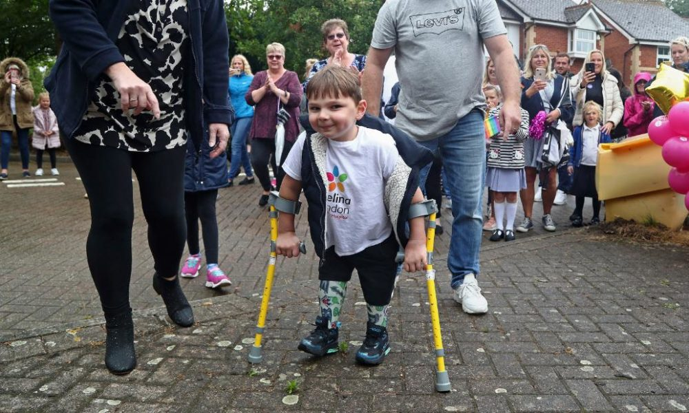 A 5-year-dilapidated boy with prosthetic legs has raised $1 million for the NHS by walking 6 miles