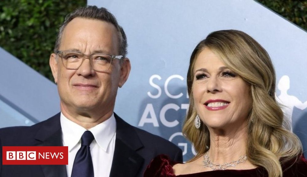Tom Hanks and Rita Wilson formally turn out to be Greek residents